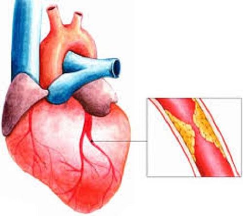Thiếu máu cơ tim có chữa được không?