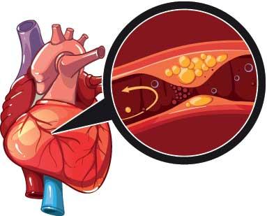Cảnh báo tử vong vì bệnh tim mạch 1