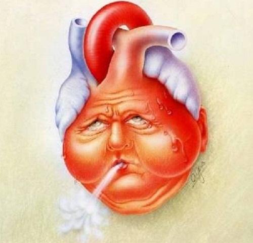 Tỷ lệ nhồi máu cơ tim ở Việt Nam, con số đáng báo động