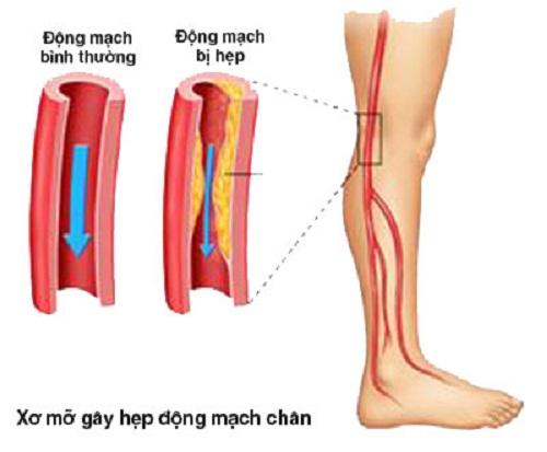 Bệnh xơ vữa động mạch chi dưới là gì?